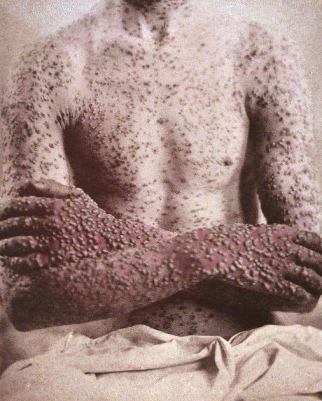 Viruela en un paciente de 1886