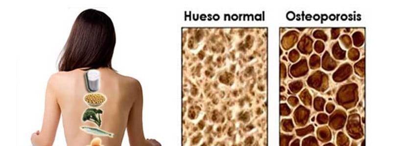 Nutricion y Osteoporosis
